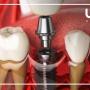 A Full Breakdown of Dental Implants Turkey Costs