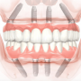 Who is an Ideal Candidate for All-on-4 dental Implants?